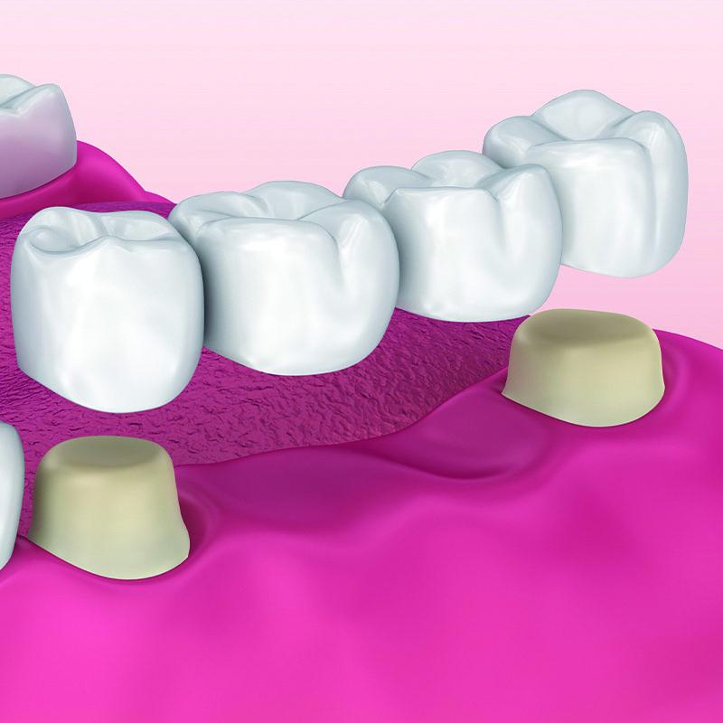 bridge for teeth